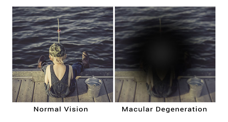 Keeping Sight Of Age Related Macular Degeneration Wythe